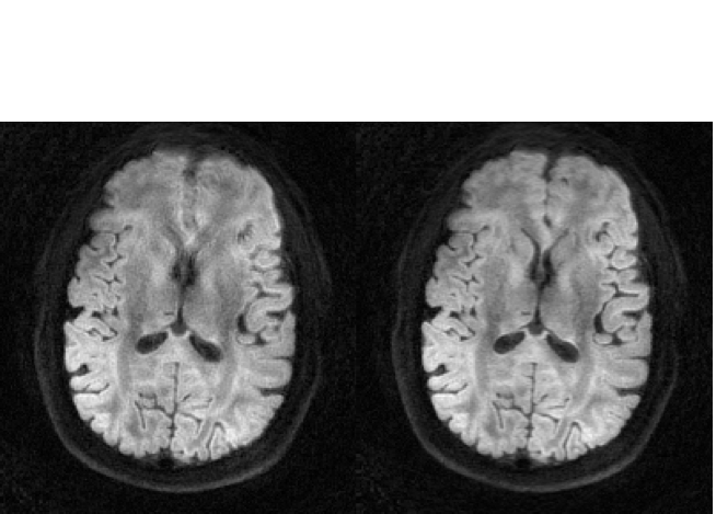 Brain MR images with and without field correction